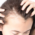 Hair loss, balding, or thin hair? We're here to help! Here's how to regrow and strengthen your hair and feel confident again!