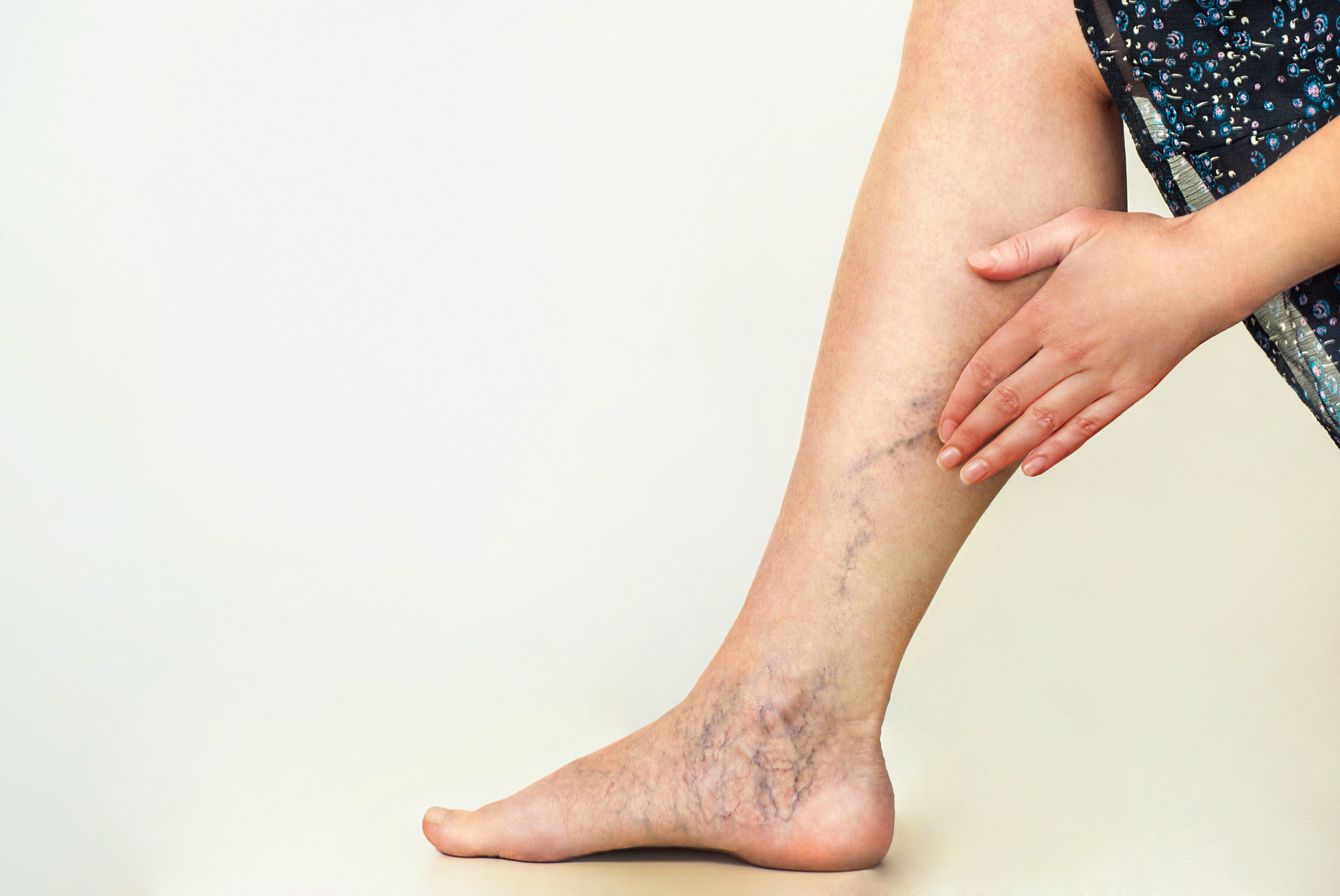 If you're trying to figure out how to get rid of varicose veins, you're in luck! Our guide here explains the different things you can do.